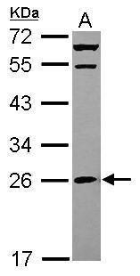 MRPS26 Antibody (PA5-31595) in Western Blot