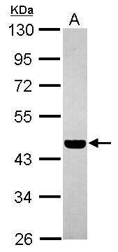 PABPC5 Antibody (PA5-31596) in Western Blot