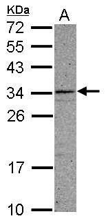 CCDC107 Antibody (PA5-31600) in Western Blot
