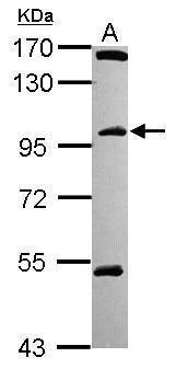 C18orf34 Antibody (PA5-31601) in Western Blot