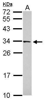 FAM78B Antibody (PA5-31604)