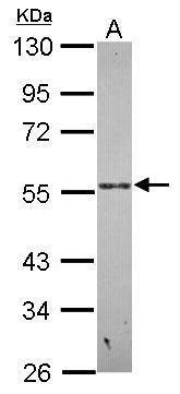 PSG9 Antibody (PA5-31613) in Western Blot