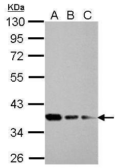 RPRD1B Antibody (PA5-31614) in Western Blot