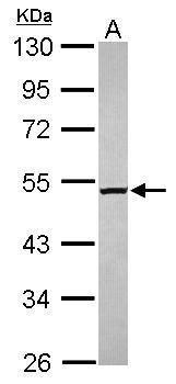 M1AP Antibody (PA5-31627) in Western Blot