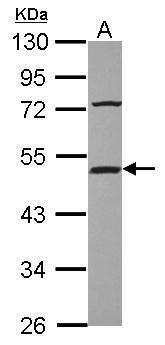 HIP Antibody (PA5-31630) in Western Blot