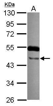 TTLL10 Antibody (PA5-31631) in Western Blot