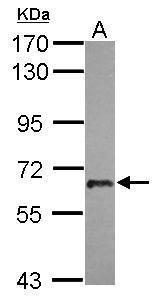 USP22 Antibody (PA5-31634) in Western Blot