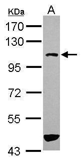 ASAP3 Antibody (PA5-31645) in Western Blot