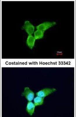 ZC3HAV1 Antibody (PA5-31650) in Immunofluorescence