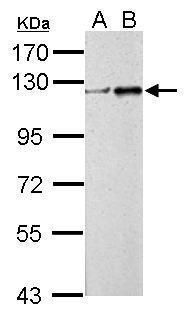 ZNF711 Antibody (PA5-31652) in Western Blot