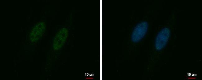 RBM26 Antibody (PA5-31667) in Immunofluorescence