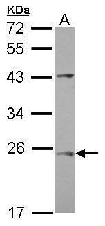 C1orf146 Antibody (PA5-31672)