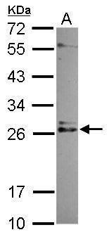 IMP3 Antibody (PA5-31673) in Western Blot