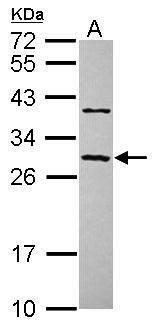 CCDC70 Antibody (PA5-31679) in Western Blot