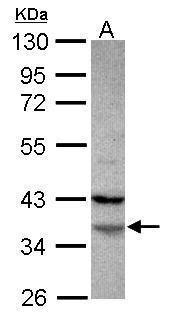 FAM76A Antibody (PA5-31685)