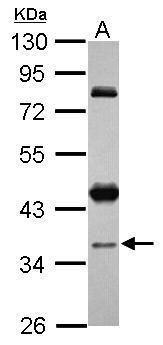 CCDC94 Antibody (PA5-31689) in Western Blot