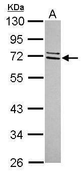CCDC67 Antibody (PA5-31690) in Western Blot