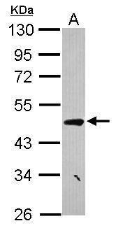 CCDC17 Antibody (PA5-31704) in Western Blot