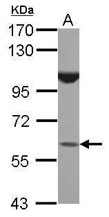 BTBD16 Antibody (PA5-31721) in Western Blot