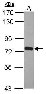 ZNF417 Antibody (PA5-31729)