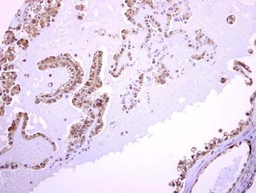 ASMTL Antibody (PA5-31731) in Immunohistochemistry (Paraffin)