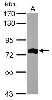 ASMTL Antibody (PA5-31731) in Western Blot