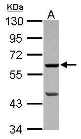 PLA2G4F Antibody (PA5-31736) in Western Blot