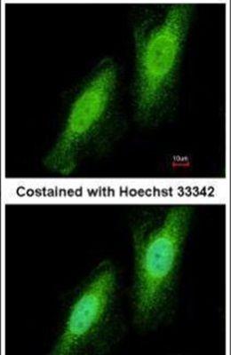 TRIM41 Antibody (PA5-31737)