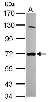 MTMR8 Antibody (PA5-31743)