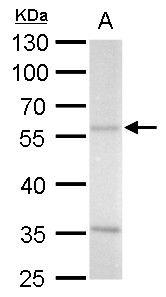 ADC Antibody (PA5-31751) in Western Blot