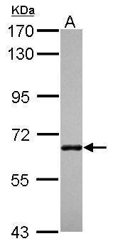 ANKRD13B Antibody (PA5-31752)
