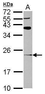 ARL8A Antibody (PA5-31753) in Western Blot