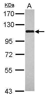 BOP1 Antibody (PA5-31757) in Western Blot
