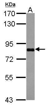 CCDC14 Antibody (PA5-31759) in Western Blot