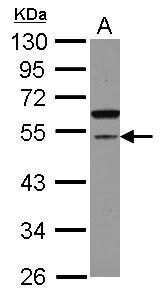 CDCA7L Antibody (PA5-31761)