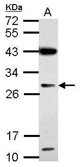 IMP4 Antibody (PA5-31769) in Western Blot