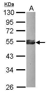 KLF17 Antibody (PA5-31774) in Western Blot