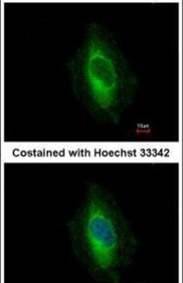 EPLIN Antibody (PA5-31776) in Immunofluorescence