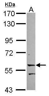 LRRC15 Antibody (PA5-31778)