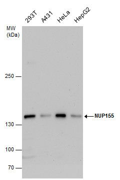 NUP155 Antibody (PA5-31786) in Western Blot