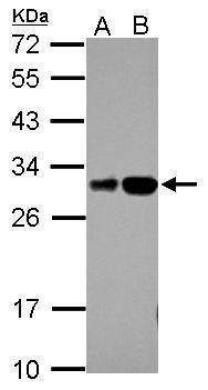 RILPL2 Antibody (PA5-31792) in Western Blot