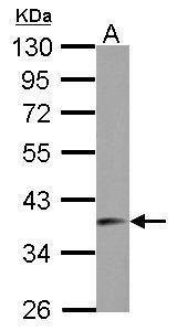 SNRNP40 Antibody (PA5-31800) in Western Blot