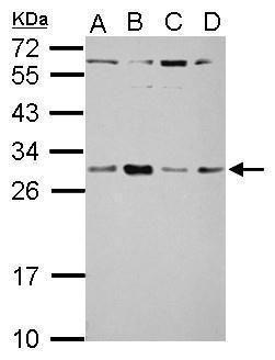 TSR2 Antibody (PA5-31806) in Western Blot
