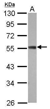 ZC3H10 Antibody (PA5-31814) in Western Blot
