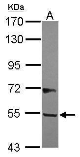 B3GALNT2 Antibody (PA5-31819)