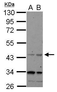 CHRFAM7A Antibody (PA5-31823) in Western Blot