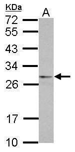 eIF4H Antibody (PA5-31825)