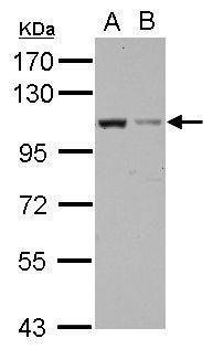 EXOC2 Antibody (PA5-31826)