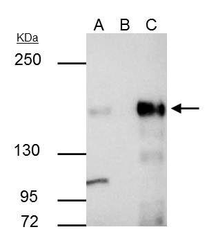 KDM6A Antibody (PA5-31828) in Immunoprecipitation