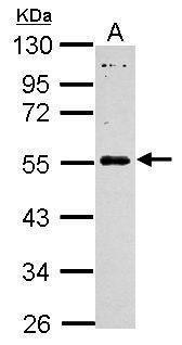 MAGEB18 Antibody (PA5-31830) in Western Blot